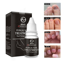 Catfit Nail Treatment Toenail Fungus Treatment Anti Infection Onychomycosis Nail Repair Anti Infection Paronychia Onychomy