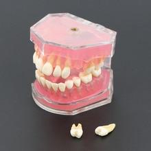 Dental Standard Modell mit Abnehmbare Zähne #4004 01 Dental Studie Teach Zähne Modell