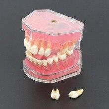 Diş çıkarılabilir dişlerle standart Model #4004 01 diş çalışma öğretmek diş modeli