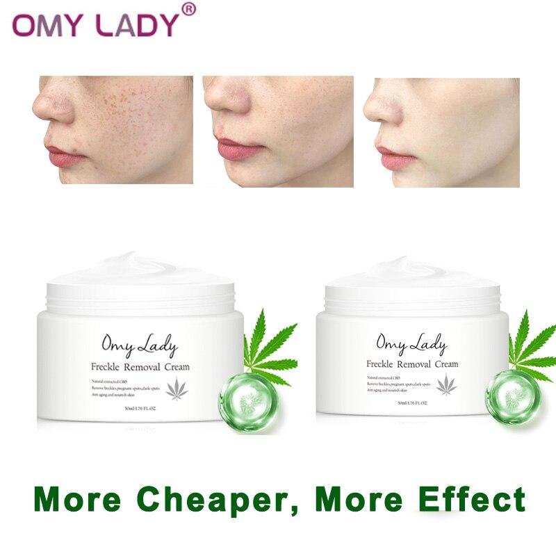 Freckle Removal Cream (2pcs) 1