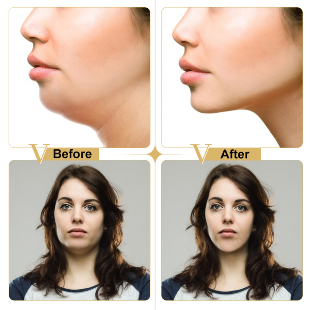 Face Firming Mask Miracle V Shape Lifting Facial Mask Slimming Eliminate Edema Lifting Firming Thin Masseter Face Care Tool 2