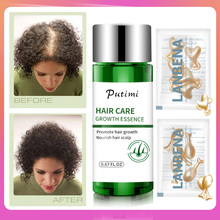 Fast Powerful Nourishing Hair Growth Serum Prevent Baldness