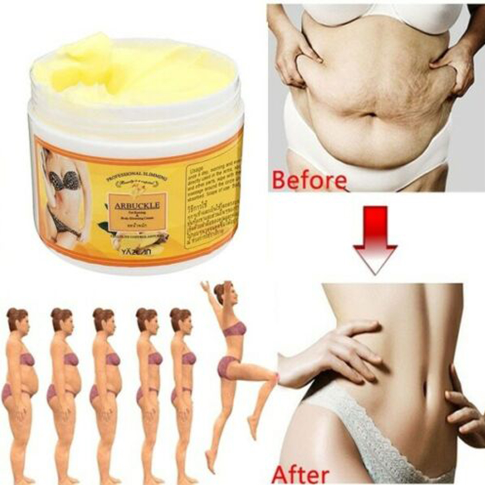 Remove Pregnancy Scars Acne Cream Stretch Marks Treatment Maternity Repair Firming Body Slimming Creams Care Ginger Fat Burning