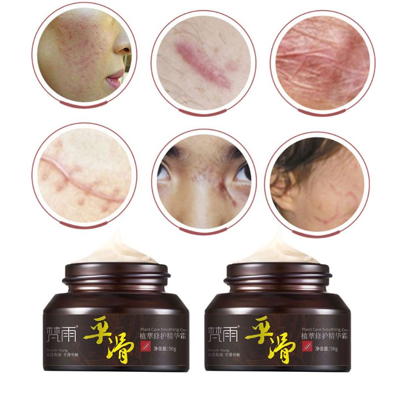 50g Natural Plant Repair Essence Cream Skin Face Acne Scar Removal Spots Treatment Moisturizing Freckle Lotion Beauty Cosmetic
