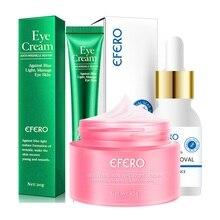 Face Cream Remove Freckle Whitening Skin Repair Melasma Acne Dark Spots Freckle