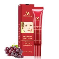 1pcs Acne Scar Removal Skin Body Face Repair Cream Acne Stain Treatment Whitening Pigmentation Correcetor Brightening Cream 15g