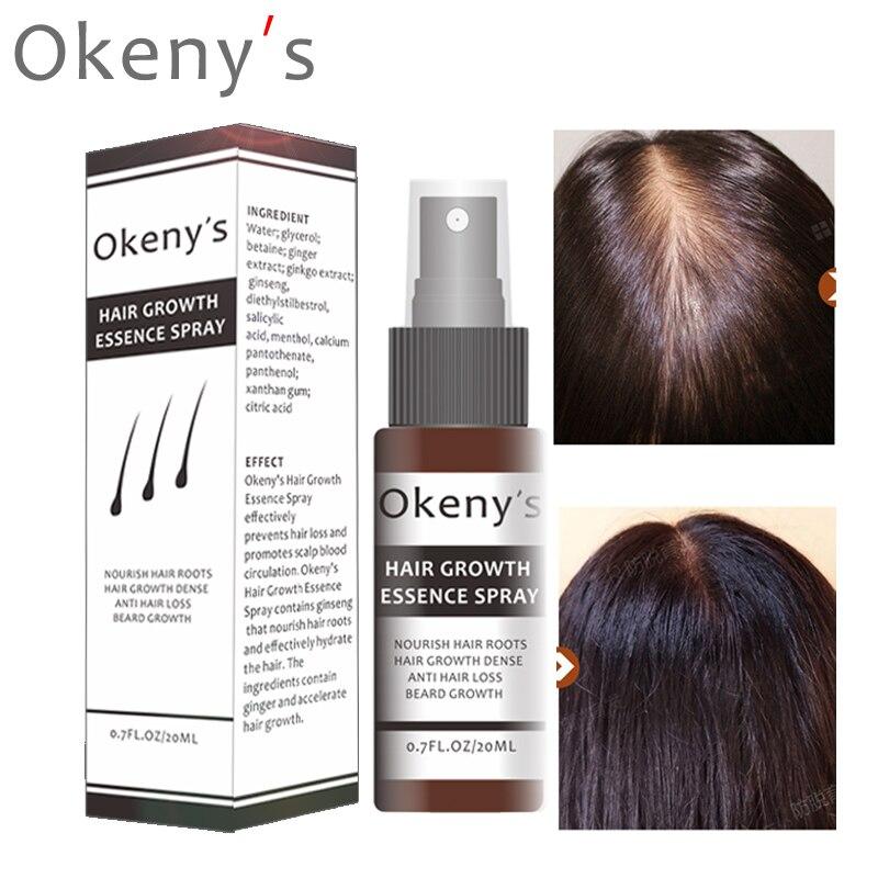 Okeny's Ginger Hair Growth Essence Spray 20ml Grow Restoration Bread Oil Serum For Man Woman Anti Hair Loss Prevent Baldness