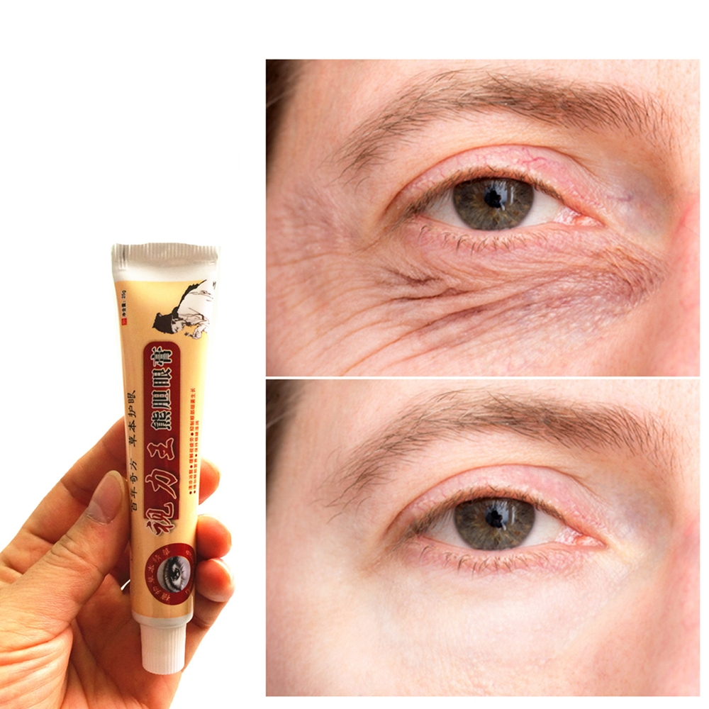 25g/tube Chinese Medicine  Eyes Masks Dark Circle Remover Ointment Lifting Wrinkle Whitening Moisturizing Eye Patches