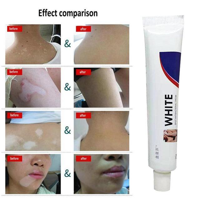 Crema Médica China para la enfermedad del punto blanco, pigmento de melanina que promueve la piel linímica, crema para el tratamiento de la enfermedad de Leukoplakia