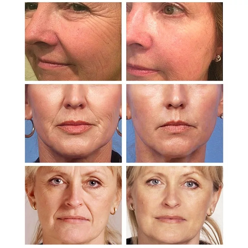 AuQuest 5 Seconds Wrinkle Remover Instant Firmly Anti Aging Moisturizing Remove Fineline Face Cream Beauty Skin Care 20G-2