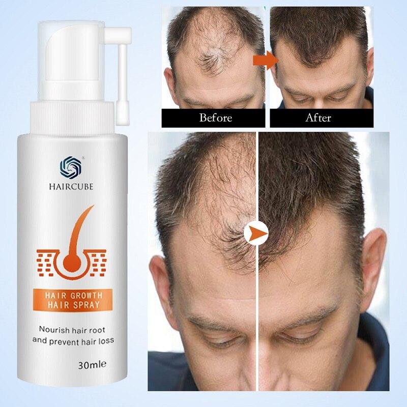 HAIRCUBE Stop Anti utrata włosów szybkie produkty stymulujące porost włosów dla mężczyzn kobiece włosy wzrost Spray Essential Oil płynna regeneracja esencji