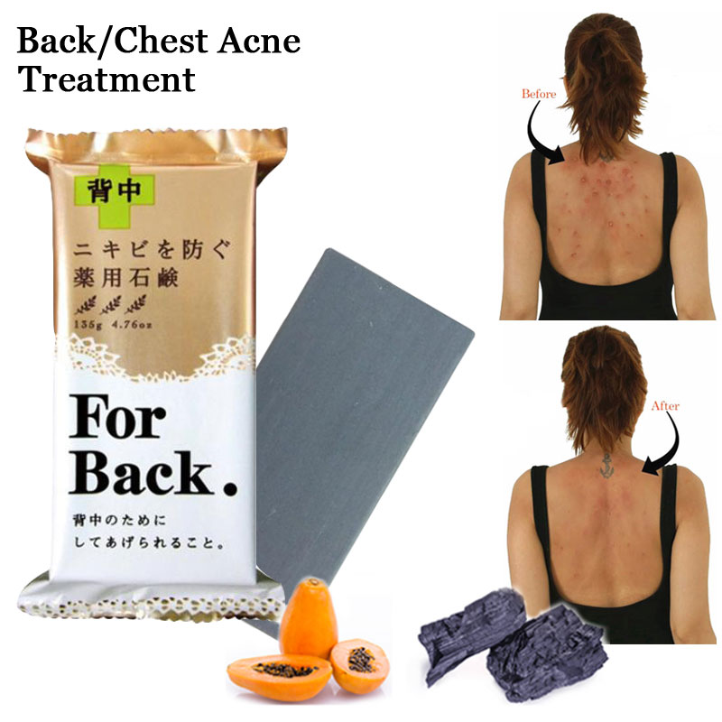 Pelican For Back Chest Acne Medicated Soap 135g Charcoal Clay Dextoxifying With Pawpaw Essence Skin Clear Body Whitening Soap
