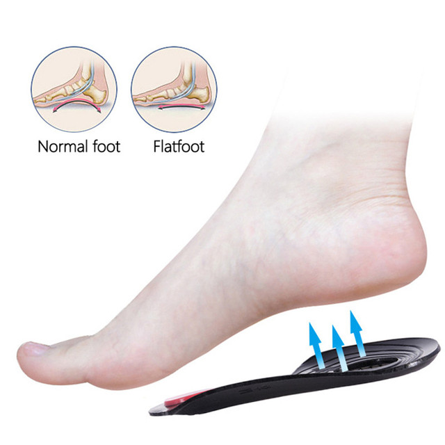Unisex O/X Legs Correction Insoles Orthopedic Insoles Arch Support Orthoses Pad Massaging Shoe Insoles Foot Health TK-in 4