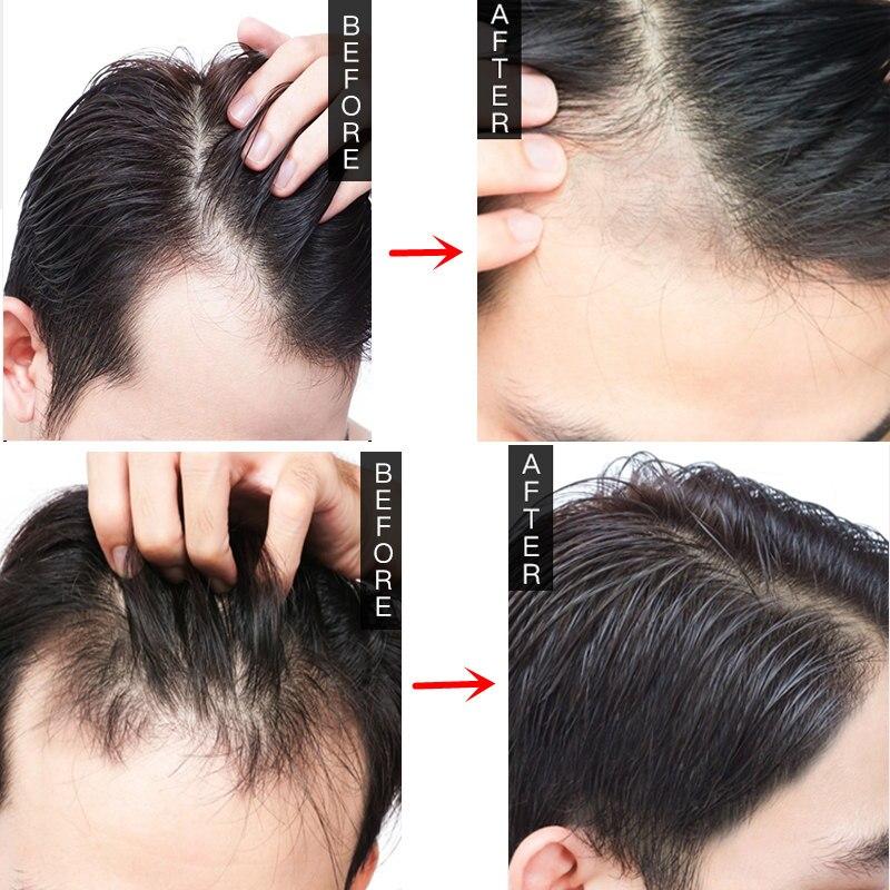 Hot Sale Baf6 Unisex Women Men Herbal Hair Growth Products
