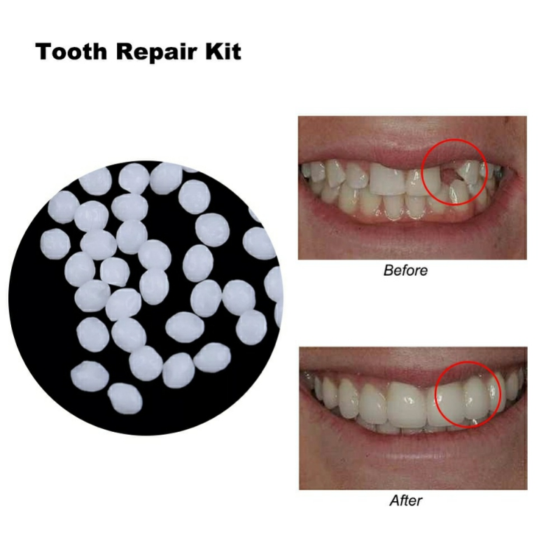 50/20/10g Denture Solid Glue Dental Restoration Temporary Tooth Repair Kit Teeth And Gaps False Teeth Solid Glue Denture Adhesiv