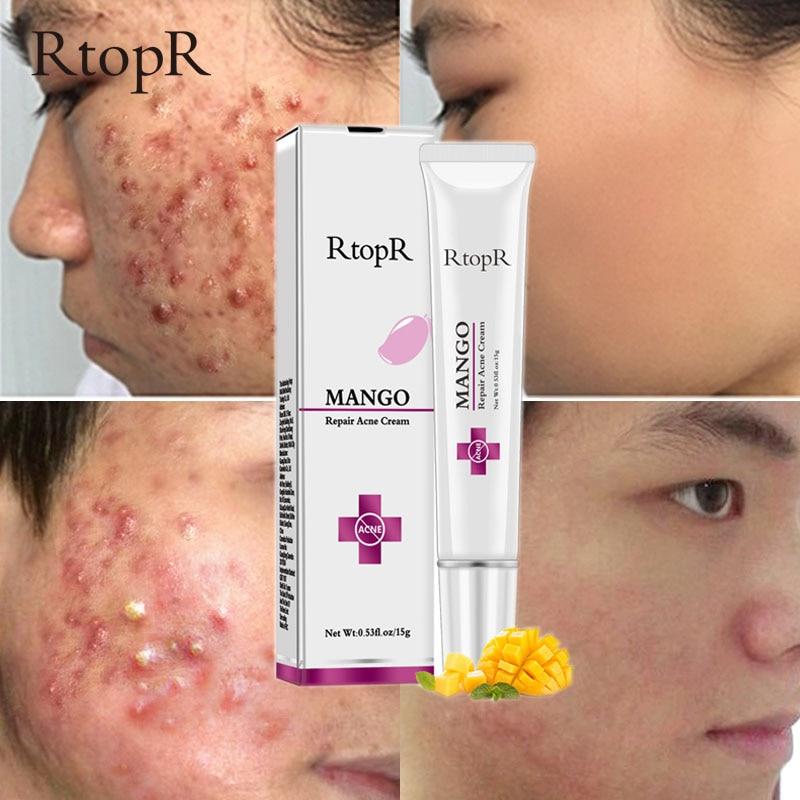 Acne Treatment Face Cream Blackhead Repair Gel Oil Control Shrink Pores Scar Whitening Moisturizer Skin Care Korean Cosmetics 1
