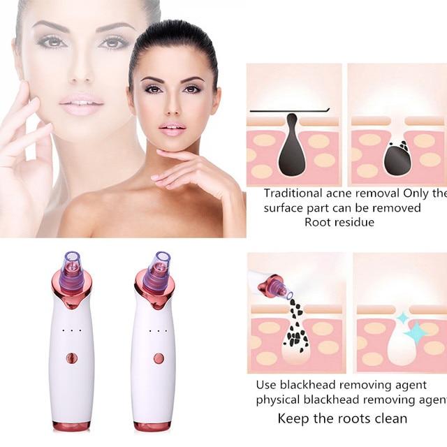 Facial blackhead remover electric