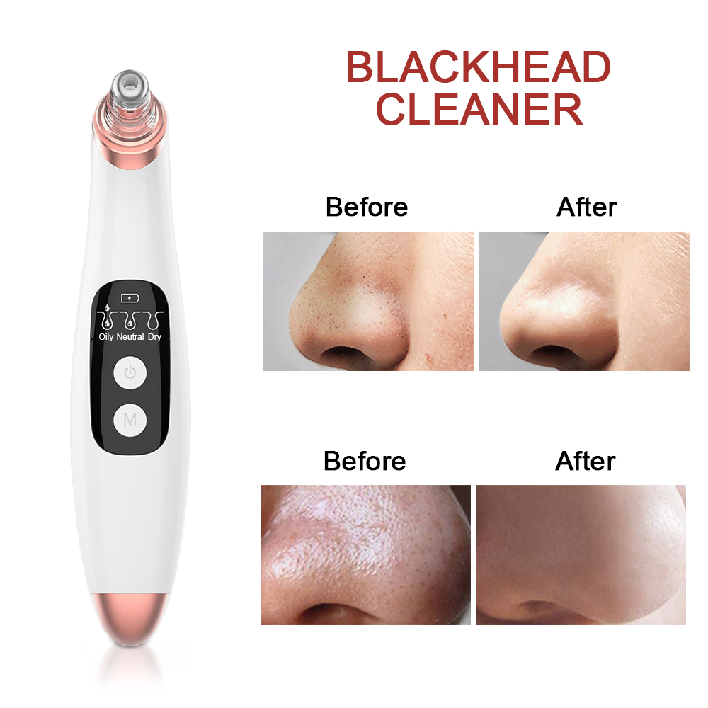 USB Vacuum Suction Blackhead Remover Nose Facial Pore Cleaner Spot Acne Black Head Pimple Removal Beauty Face Skin Care Tools