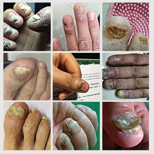 Lanbena fungal nail repair essence