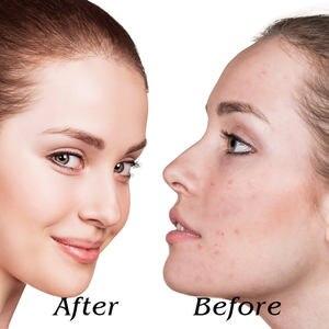 Image 5 - Mascarilla Facial con luz LED para rejuvenecimiento de la piel, tratamiento de fotones, antiarrugas, terapia de acné, máquina de estiramiento de la UE