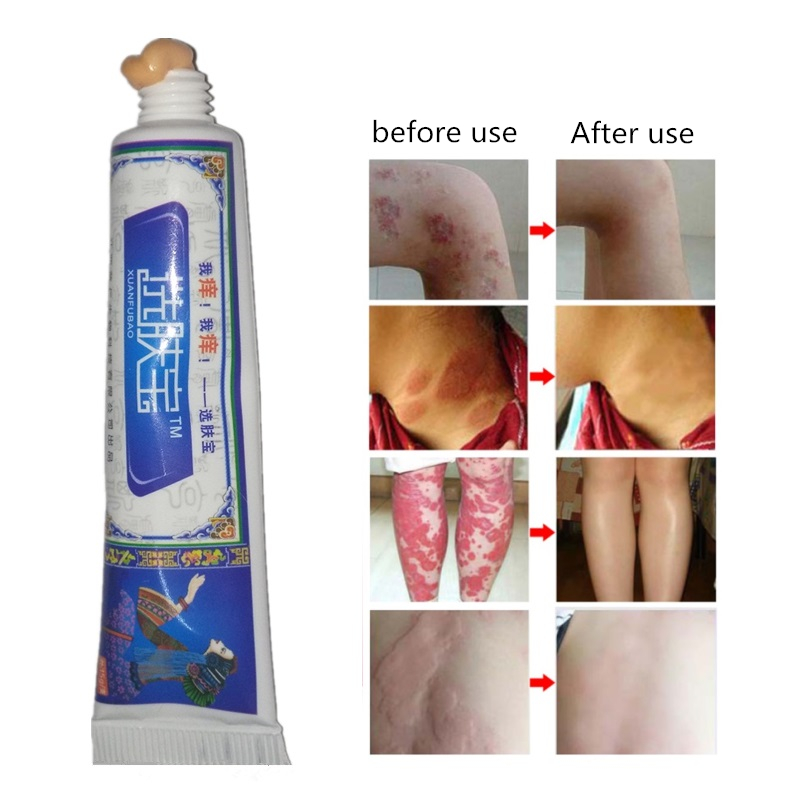 Body Cream Skin Care Relieve Psoriasis Dermatitis Itching Repair Body Eczema Antibacterial Cream Men Women Dropshipping 0011. image