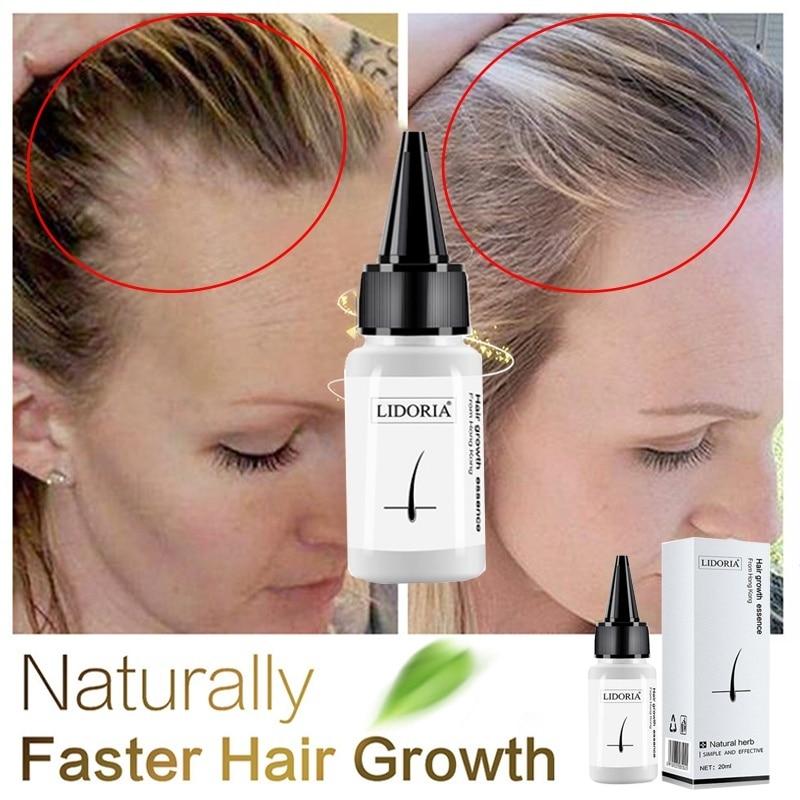 Utrata włosów towary naturalne bez efektów ubocznych rosną włosy szybsze odrastanie włosów rzęsy Serum tusz do rzęs wydłużenie wzrostu brwi