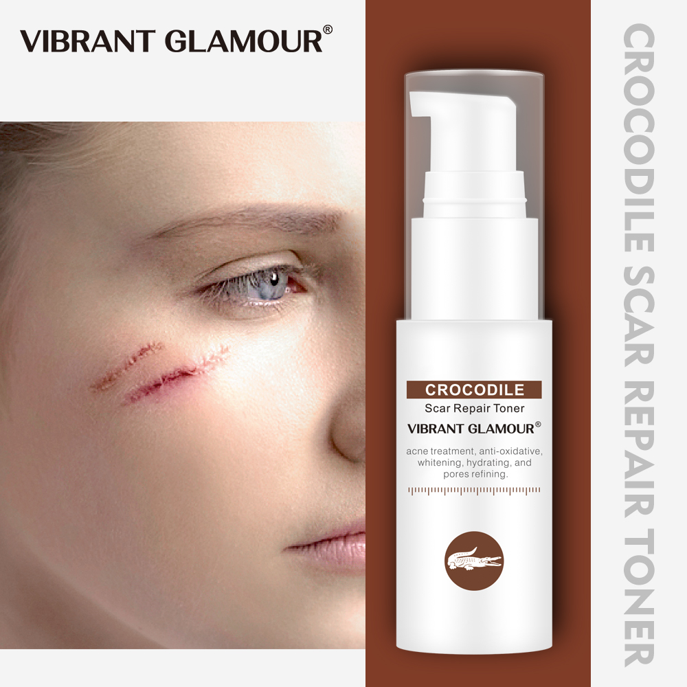 VIBRANT GLAMOUR Crocodile Face Toner Repair Scar Essence Removal Acne Scar Marks Pigmentation Corrector Scalded Scar Body Care
