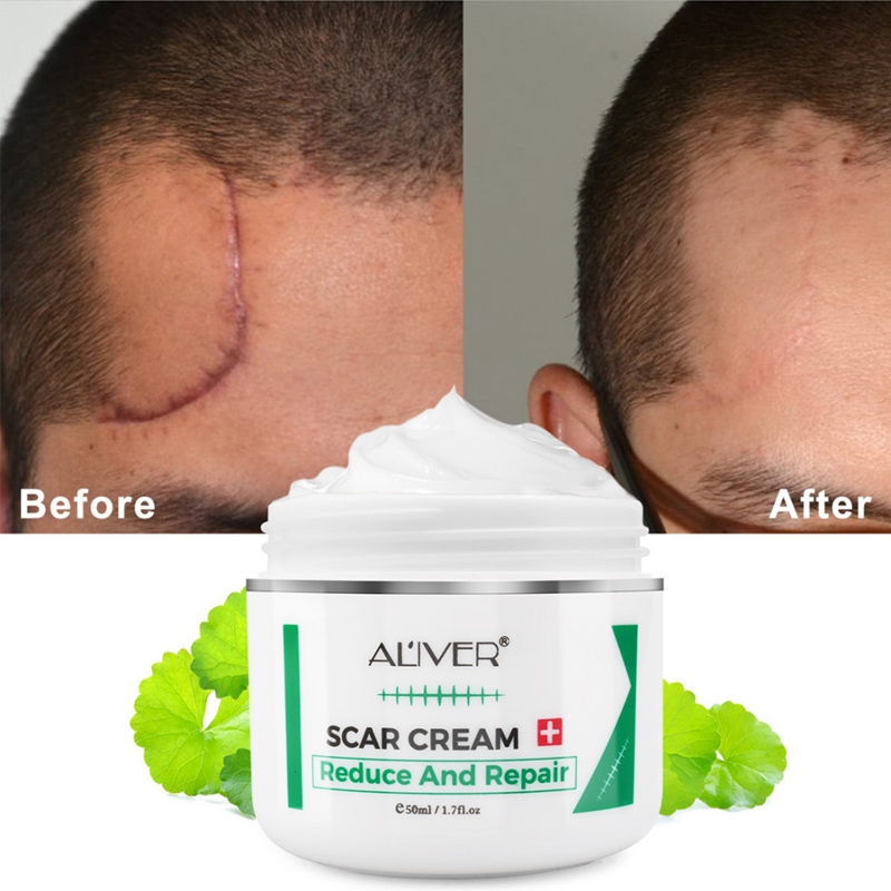 Advanced Treatment For Face & Body Old & New Scars From Cuts,Stretch Marks,C-Sections & Surgeries Scar Removal Cream Hot
