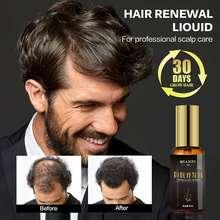 Fast Hair Growth Essential Oil Anti Prevent Hair Lose Liquid Damaged Hair Repair Growing For Women