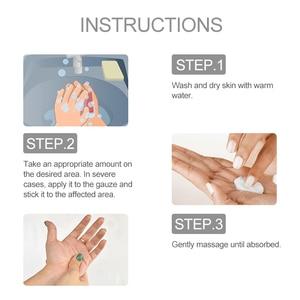 Image 5 - 1pcs Antibacterial Cream Anti Itching Psoriasis Dermatitis Eczematoid Chinese Herbal Ointment Medical Plasters Skin Care P1073