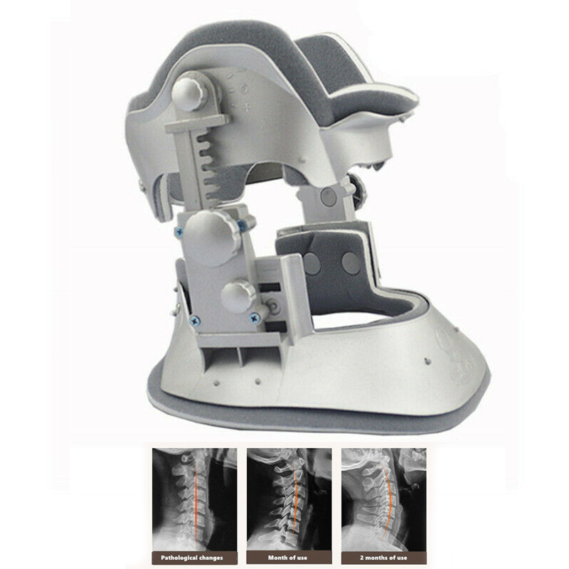 Medical Schubert Chubert Cervical Neck Tractor Traction Device  Orthosis Braces Neck Brace Collar Household Pain Relief
