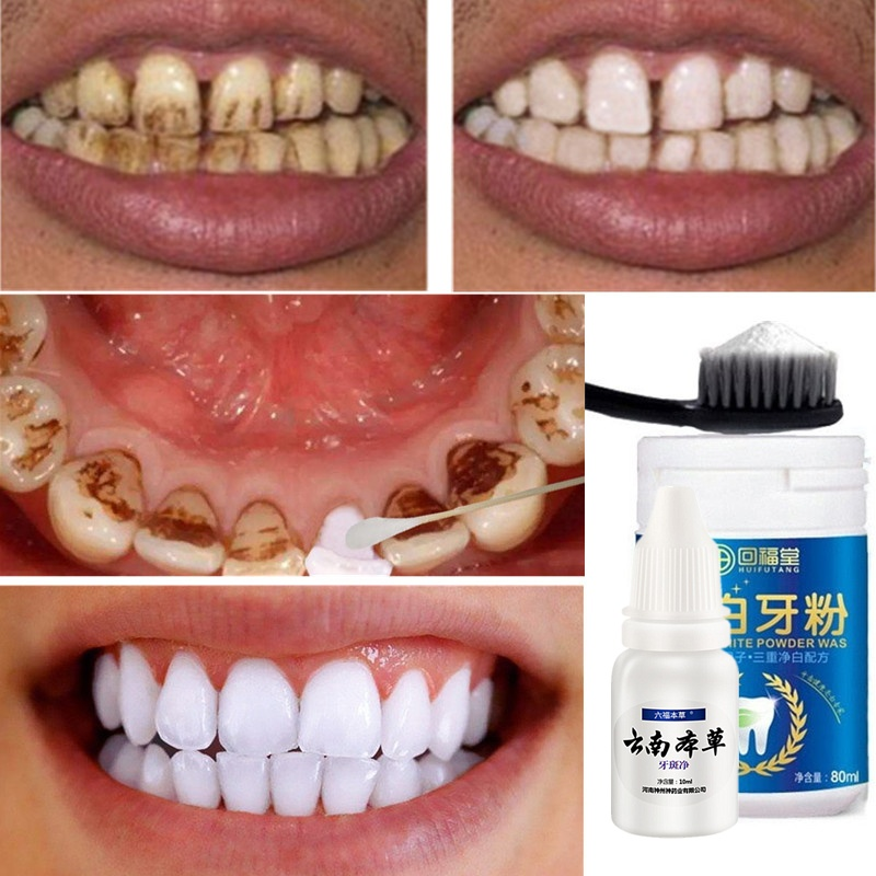 Toothpaste Whitening-Powder Tartar-Removal Cleaning-Toothbrush Stains Oral-Hygiene Teeth title=