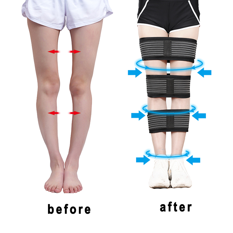 Posture-Correction Straighten-Belt Legs For Me Women Bandage Comfortable 3pcs/Set
