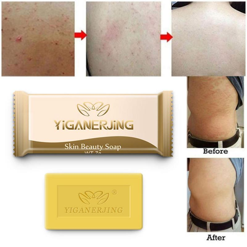 Antibacterial Mite Sulphur Soap Cleansing Acne Bath Soap Disinfecting Skin Itching Treatment Soap