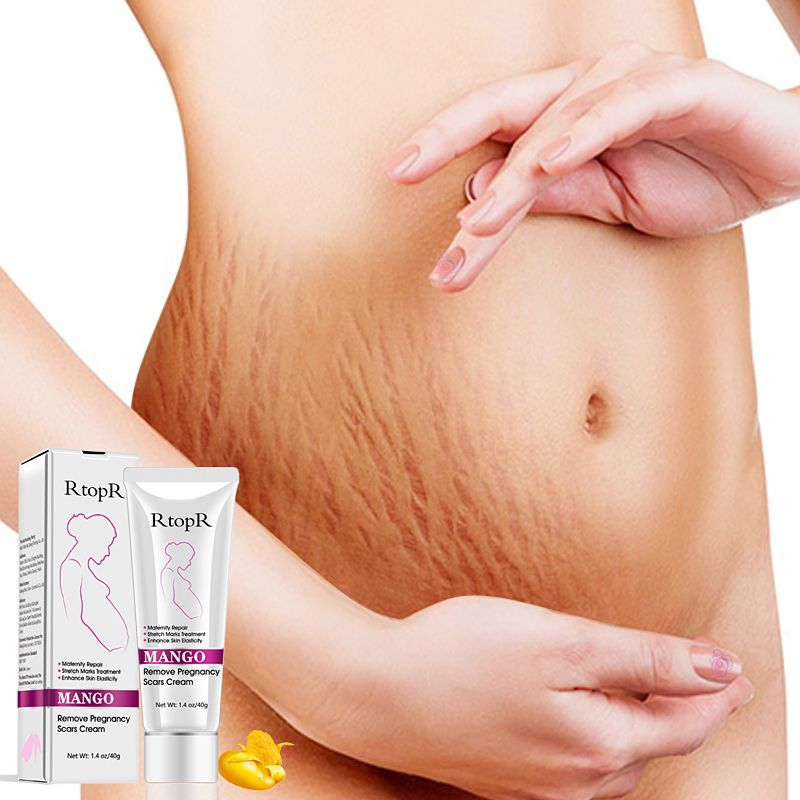 40g Mommy Stretch Marks Repair Remove Pregnancy Scar Cream Acne Fat Striae Gravidarum Treatment Smooth Skin Recover