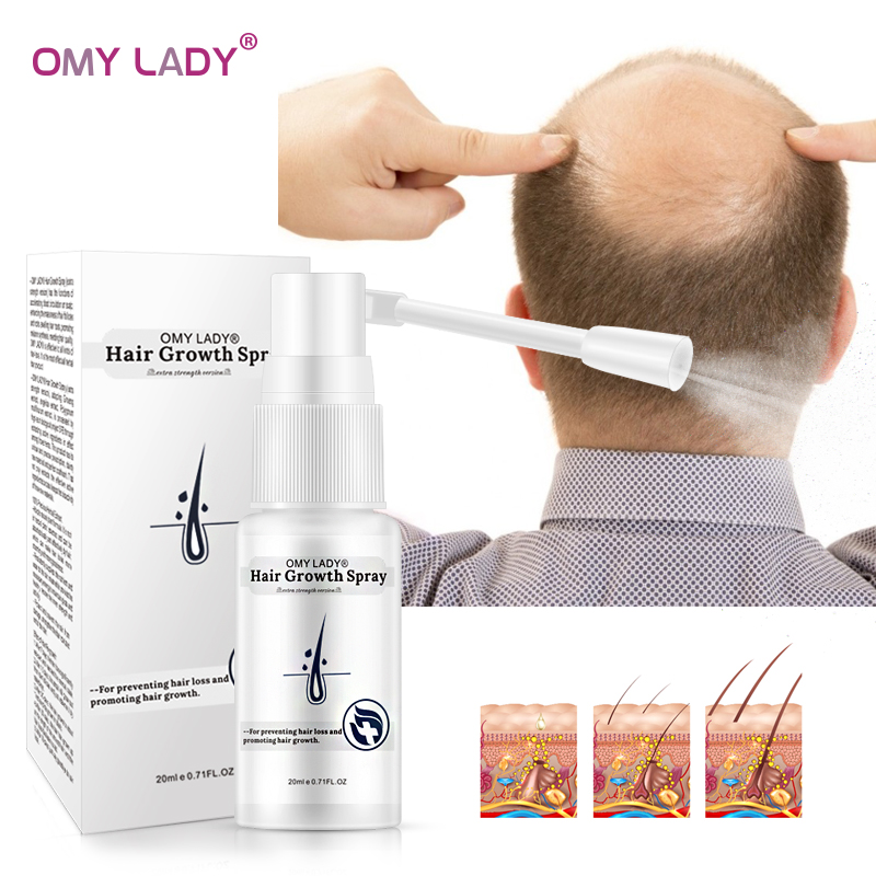 OMYLADY Hair Growth Essential Oil Anti Hair Loss Spray For Men Women Dry Hair Regeneration Repair Hair Loss Products Hair Care image
