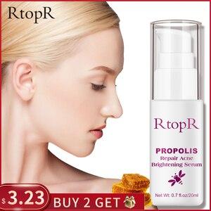 Image 1 - RtopR Propolis Repair Acne Brightening Serum Acne Scar Spots Cleaning Serum Shrink Pores Eliminates Acne Treatment Oil control