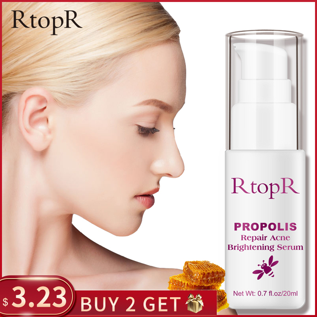 RtopR Propolis Repair Acne Brightening Serum Acne Scar Spots Cleaning Serum Shrink Pores Eliminates Acne Treatment Oil control