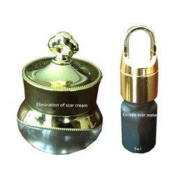 Beseitigen narbe reparatur hyperplasie narbe creme + narbe flüssigkeit