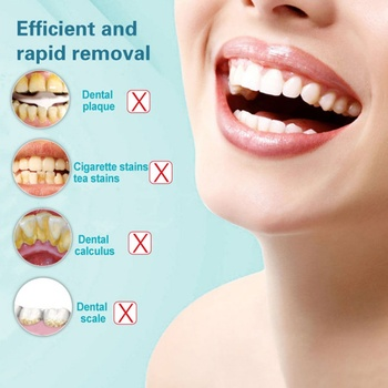 Teeth Whitening Cleaning High Frequency Vibration Tartar Remover 4