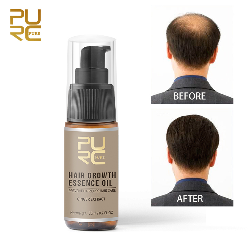 20ml Ginger Extract Hair Care Fluid Accelerate Hair Regrowth Essential Oils Nourishing Scalp Prevent Hair Loss Essential Oils