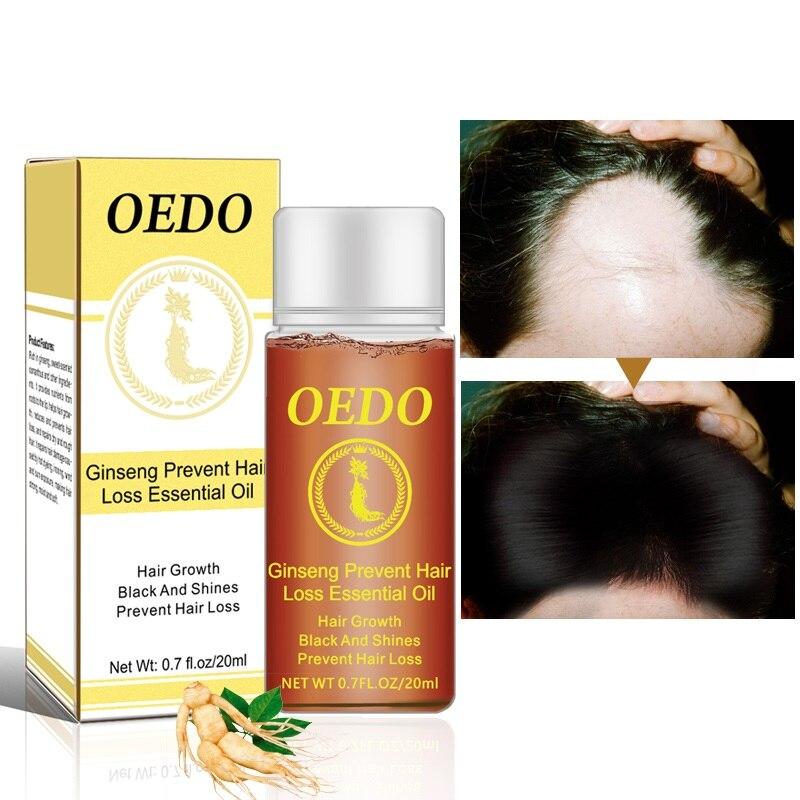 OEDO 20 мл женьшеня роста волос Предотвращение выпадения волос Жидкое средство для укладки волос лечение плотный быстрое восстановление TSLM1