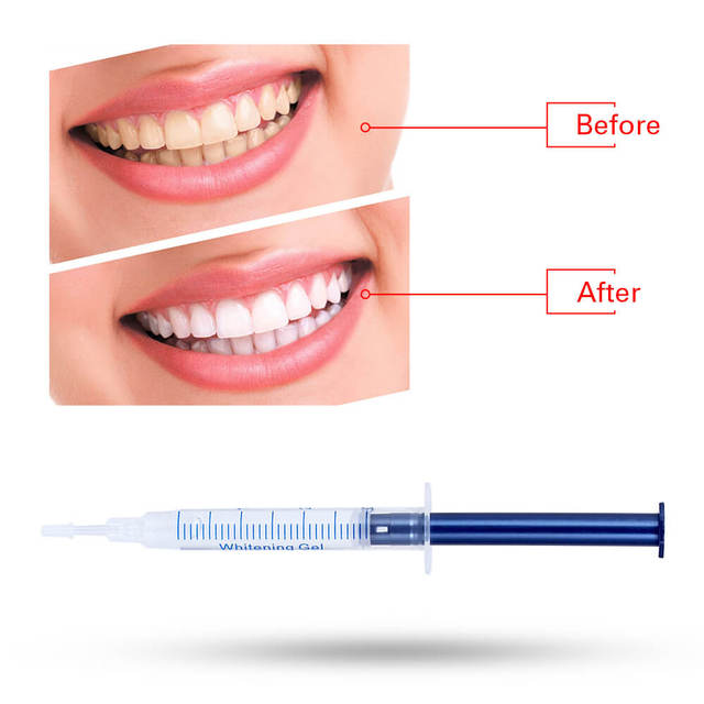 Professional 44%CP Peroxide Teeth Whitening Kit Dental Bleaching System Bright White Smile Teeth Whitening Gel With LED Light