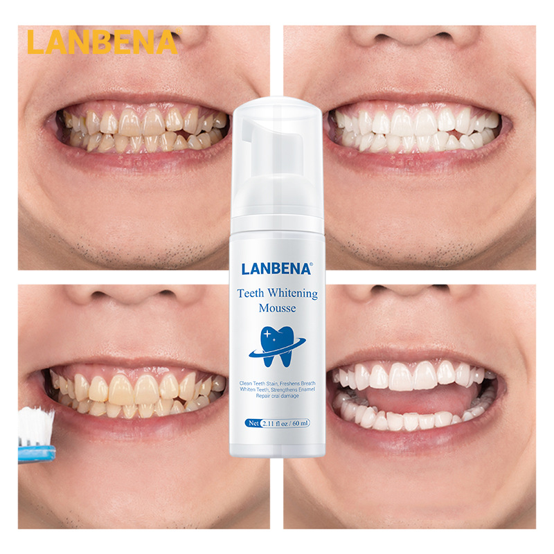 LANBENA Teeth Whitening Mousse Tooth Whitening Dental Tool Cleaning White Teeth Oral Hygiene Toothpaste Bleaching Remove Stains