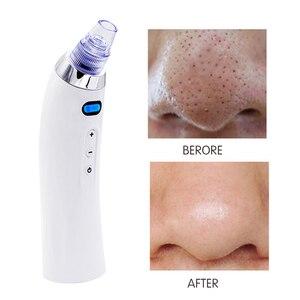 Image 5 - Aspirateur pour soins de la peau, appareil pour éliminer les points noirs et lacné, accessoire pour soins de la peau, pour le visage, nettoyage du visage, dermie, Machine à brasser