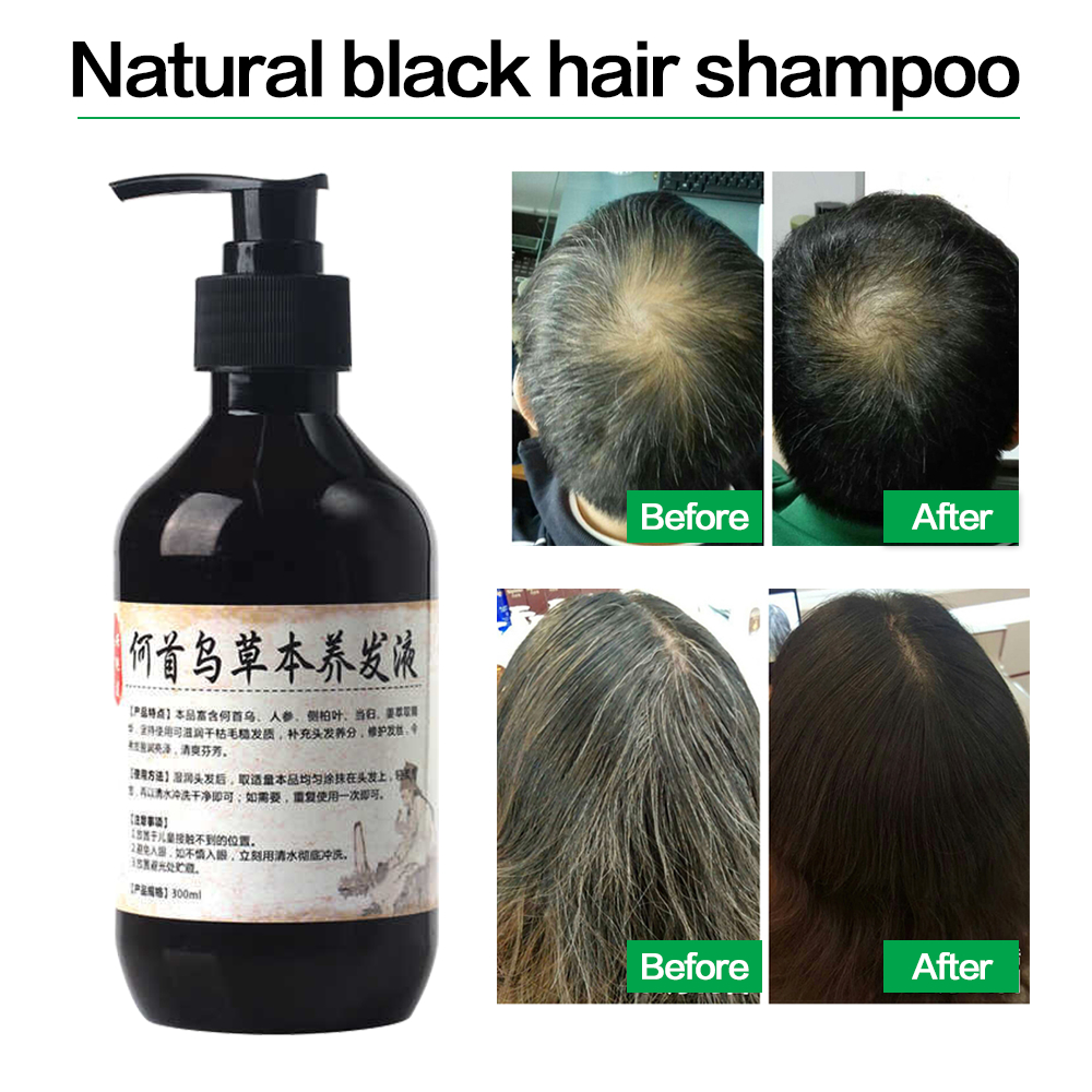 Herbal Natural Polygonum Multiflorum Shampoo Plant  Liquid Grey Hair  White Hair Removal Turn Permanent Black Hair Care 300ml