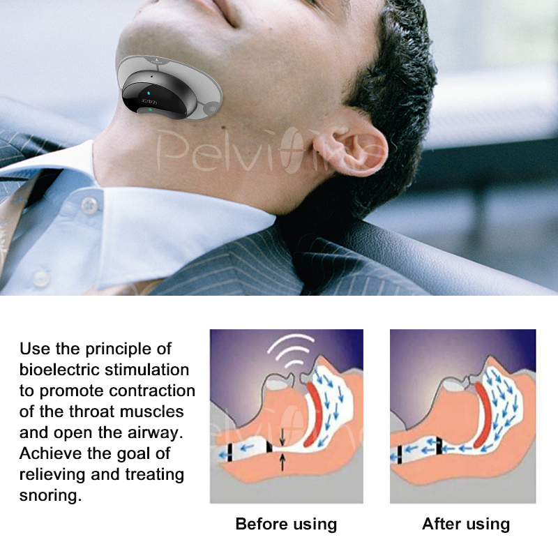Smart Snore Stopper Anti Snore ronco Solution comfortable anti Snoring Biosensor with APP and sleep apnea monitor CPAP replacer