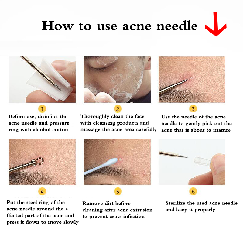 Stainless Steel Facial Acne Blackhead Remover Needles Extractor Pimple Blemish Comedone Removal Kit Double Head Face Care Tool 2