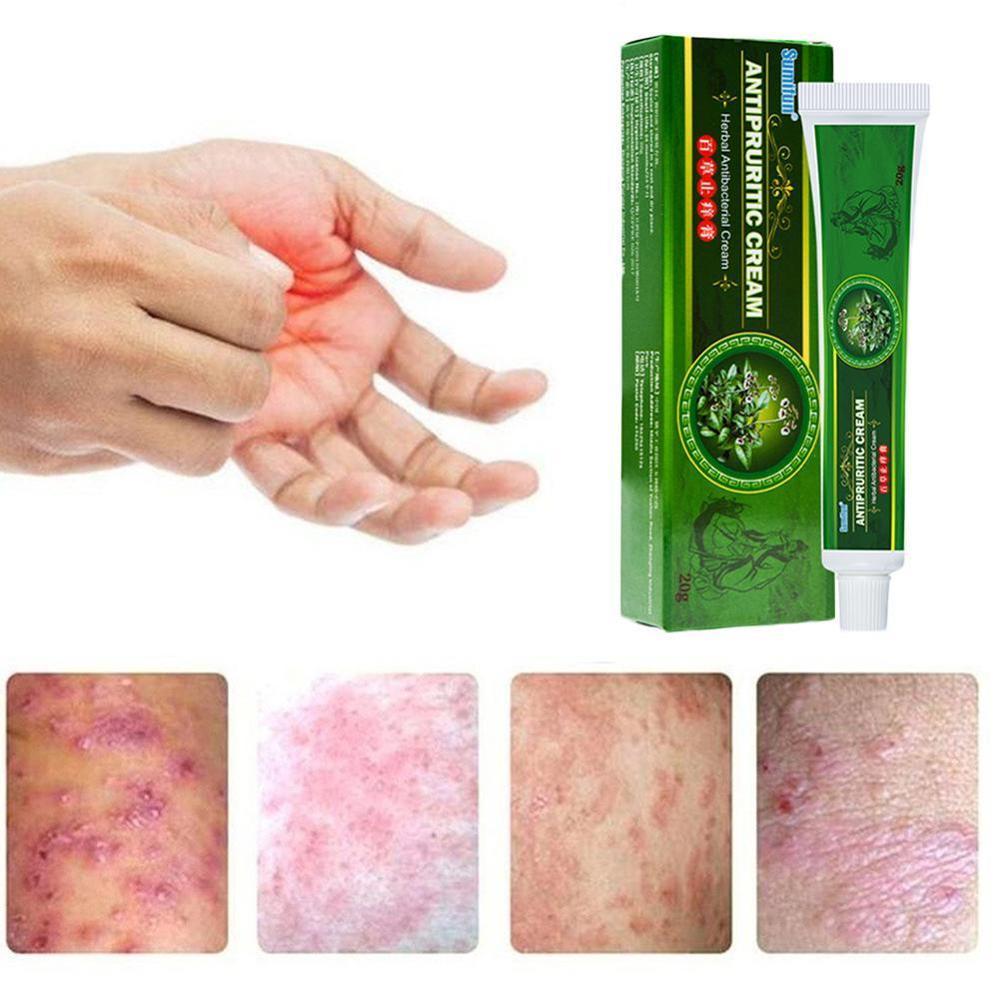 Dropshipping Skin Psoriasis Cream Dermatitis Eczematoid Cream Eczema Treatment Skin Care Psoriasis Ointment Cream D8I5