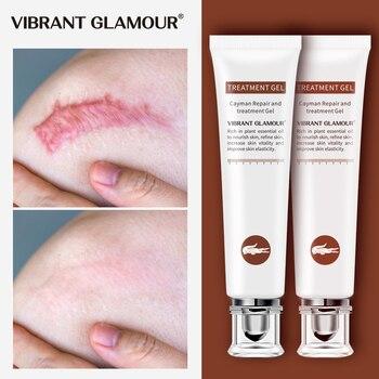 VIBRANT GLAMOUR-crema reparadora para cicatrices, Gel para cicatrices, acné, cicatrices quirúrgicas, Corrector...